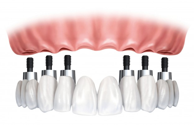 Dental-Implants-624x402