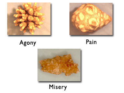 Cysteine Stones Kidney Kidney Stones The More